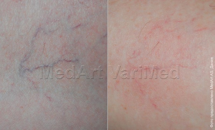 Venous mesh removal with VariMed laser