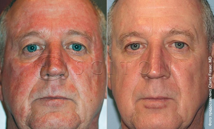 Rosacea on face BBL procedure.