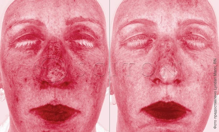 Rosacea BBL treatment