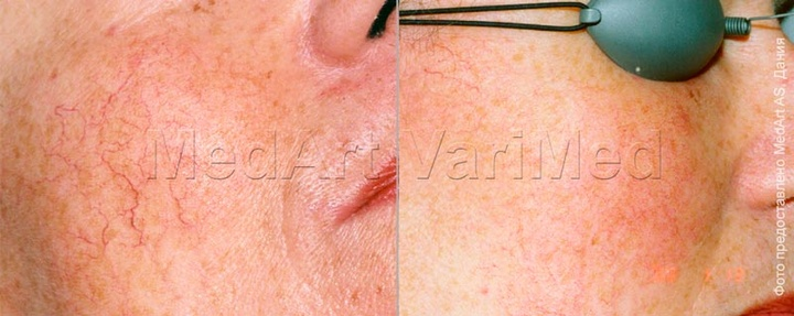 Couperosis (telangiectasia) removal with VariMed laser